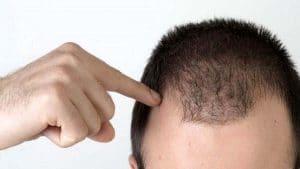 دلایل ریزش مو در مردان
