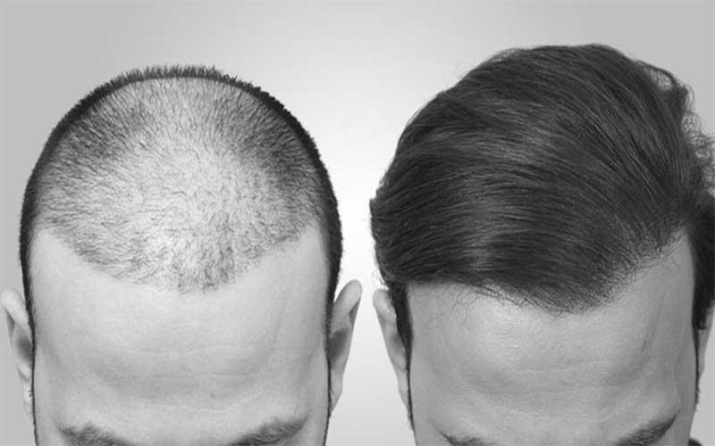روش جدید کاشت مو سلول بنیادی