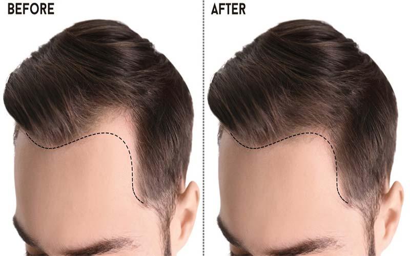 معجزه کاشت موی سر